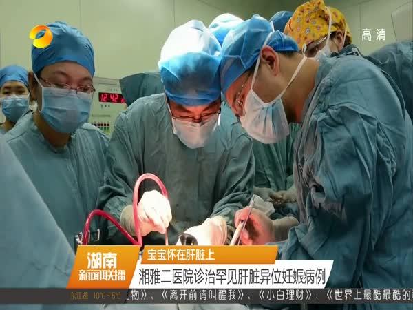 湘雅二医院诊治罕见肝脏异位妊娠病例